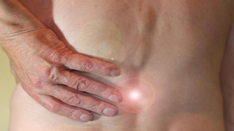 Nerv im Rücken eingeklemmt: Mögliche Ursachen und Behandlung