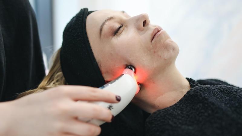 Muttermal weglasern: Wissenswertes zur Laserbehandlung