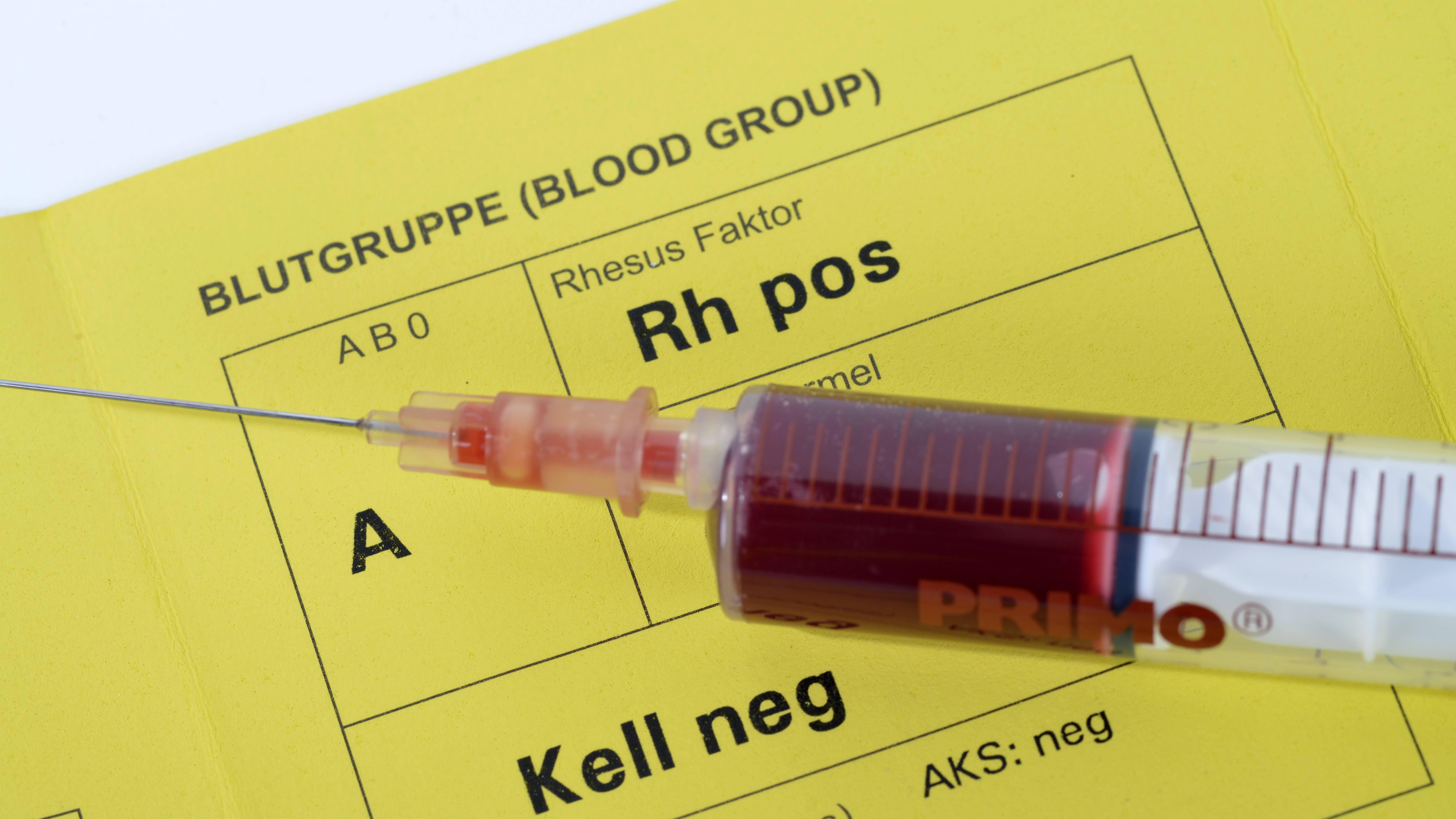 Blutgruppenbestimmung: Wie finde ich meine Blutgruppe heraus?