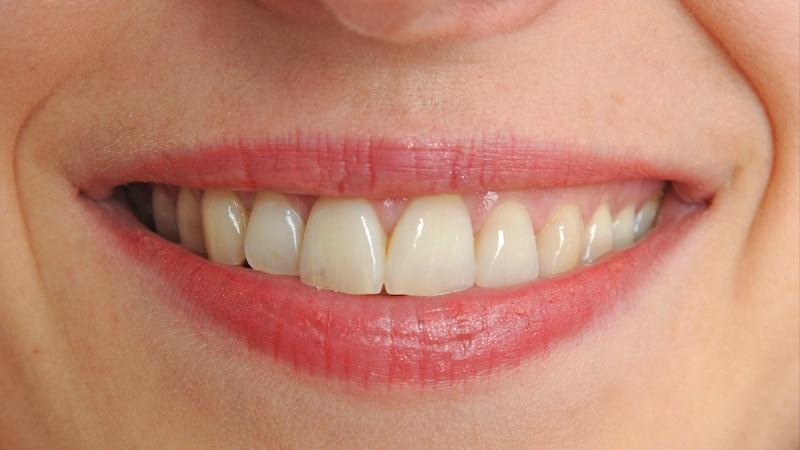 Brücke für den Zahn: Das sind die Kosten