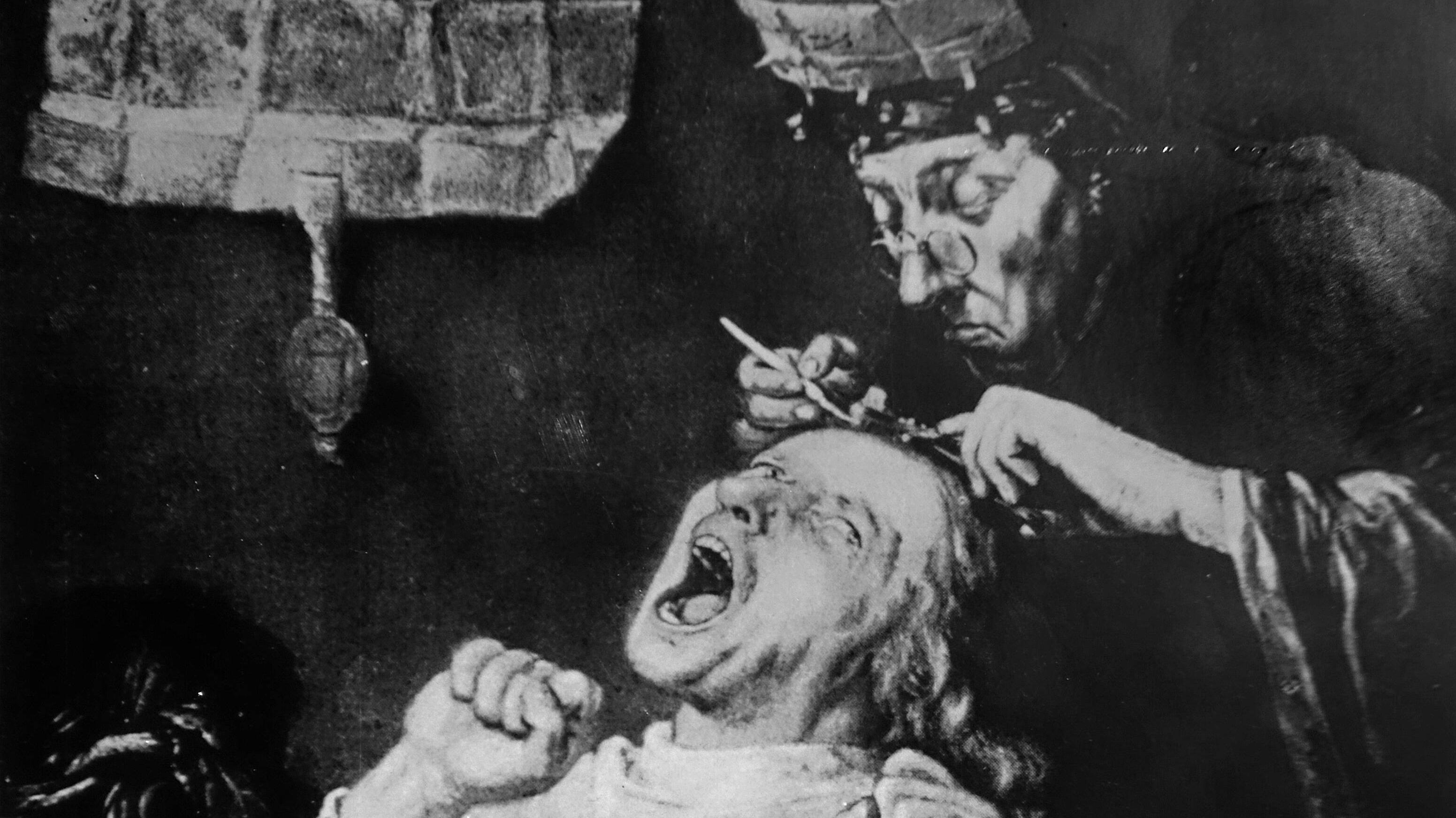 Trepanation zu Zeiten des Mittelalters