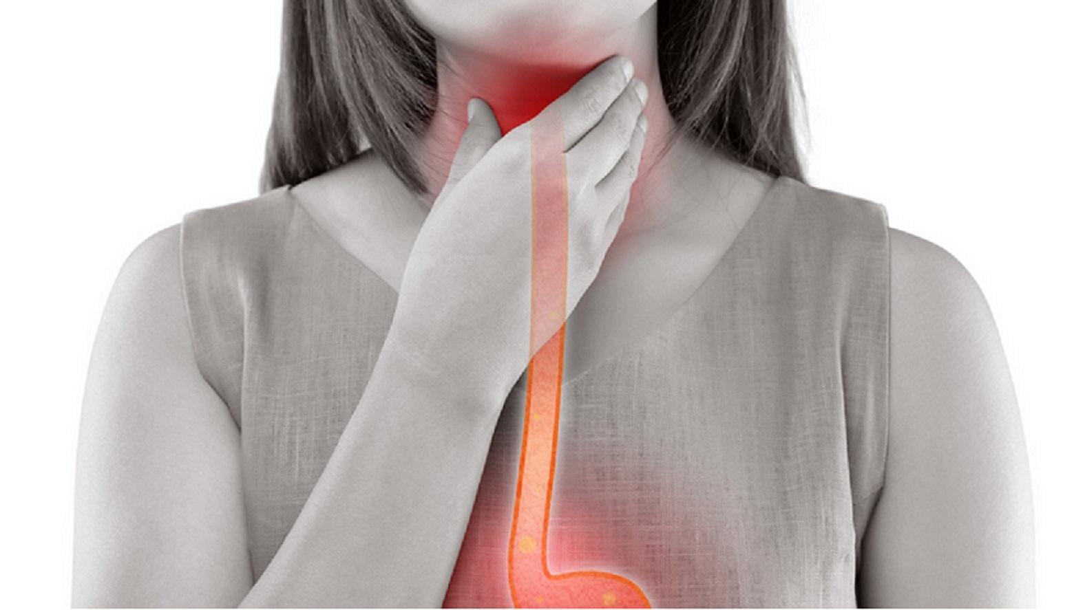 Eine akute Laryngitis zeigt sich meist in Form von Husten oder Heiserkeit