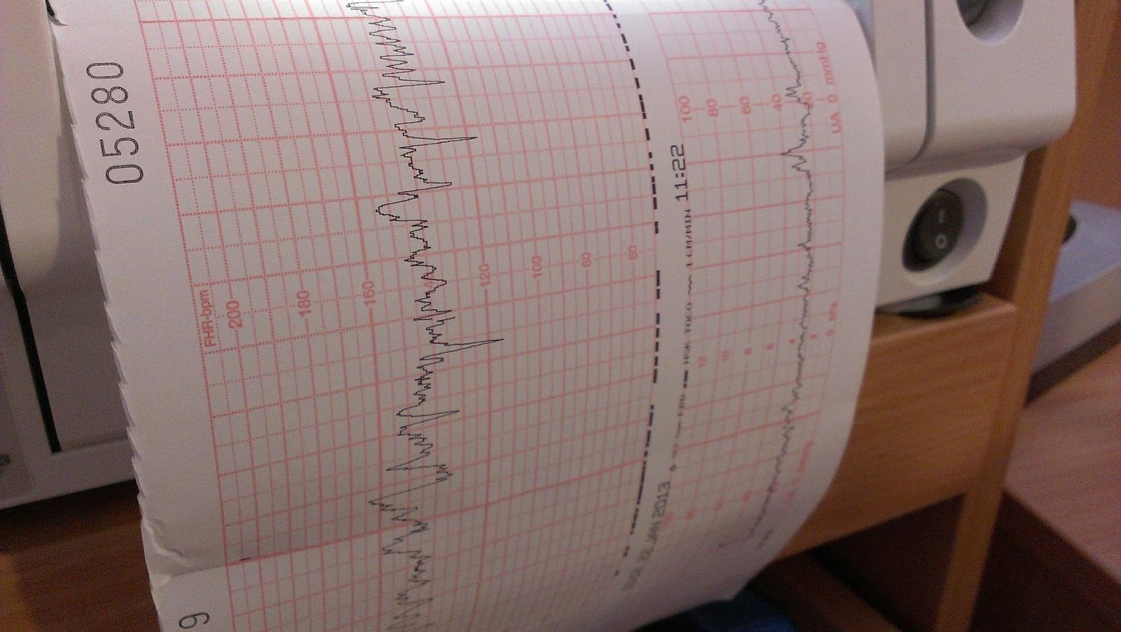 Das CTG zeichnet die Herzfrequenz des Babys und die Wehentätigkeit der werdenden Mutter auf.