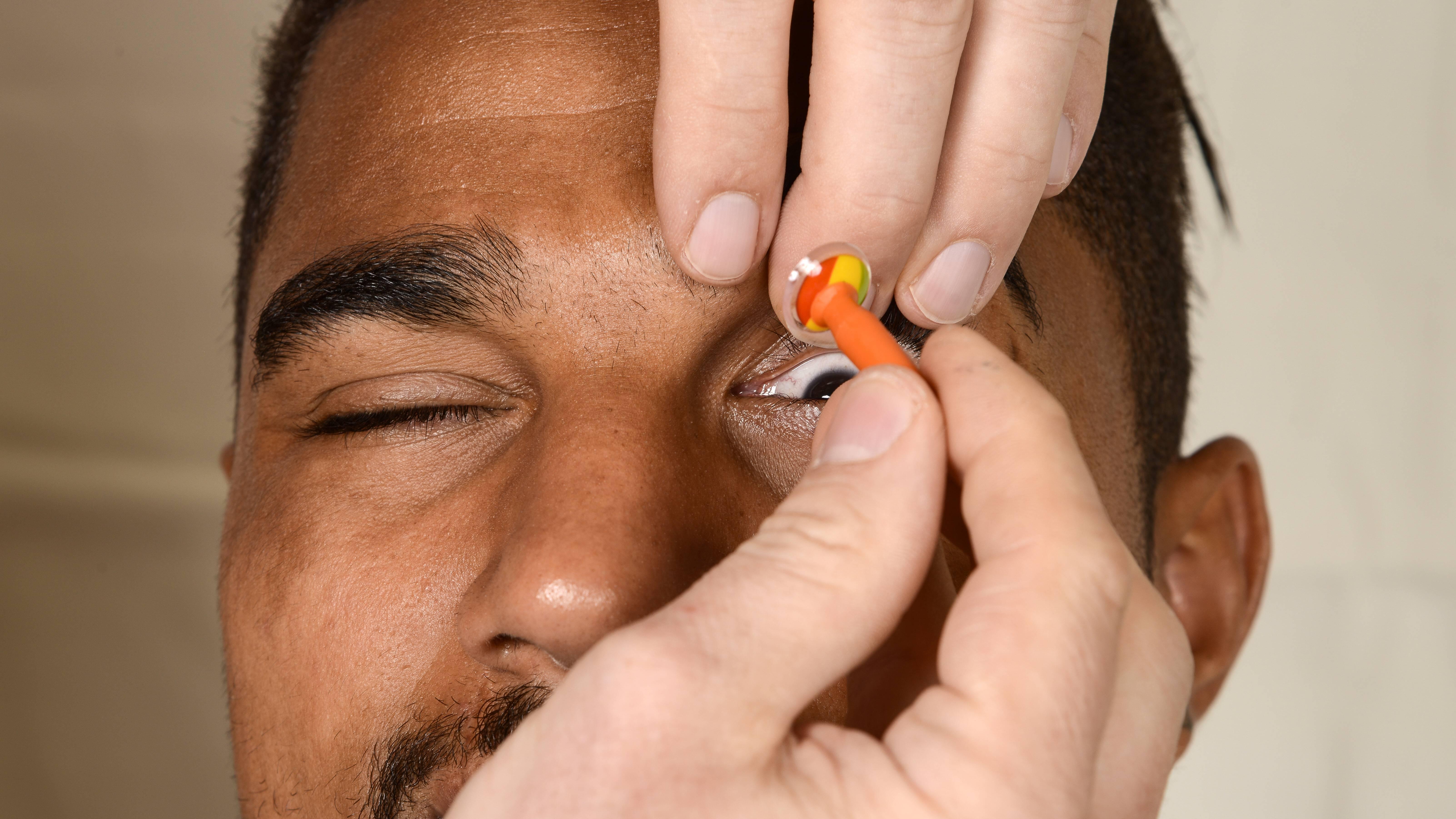 Treten beim Herausnehmen Schwierigkeiten auf, lassen Sie sich durch eine zweite Person helfen oder benutzen bei harten Linsen einen Sauger.
