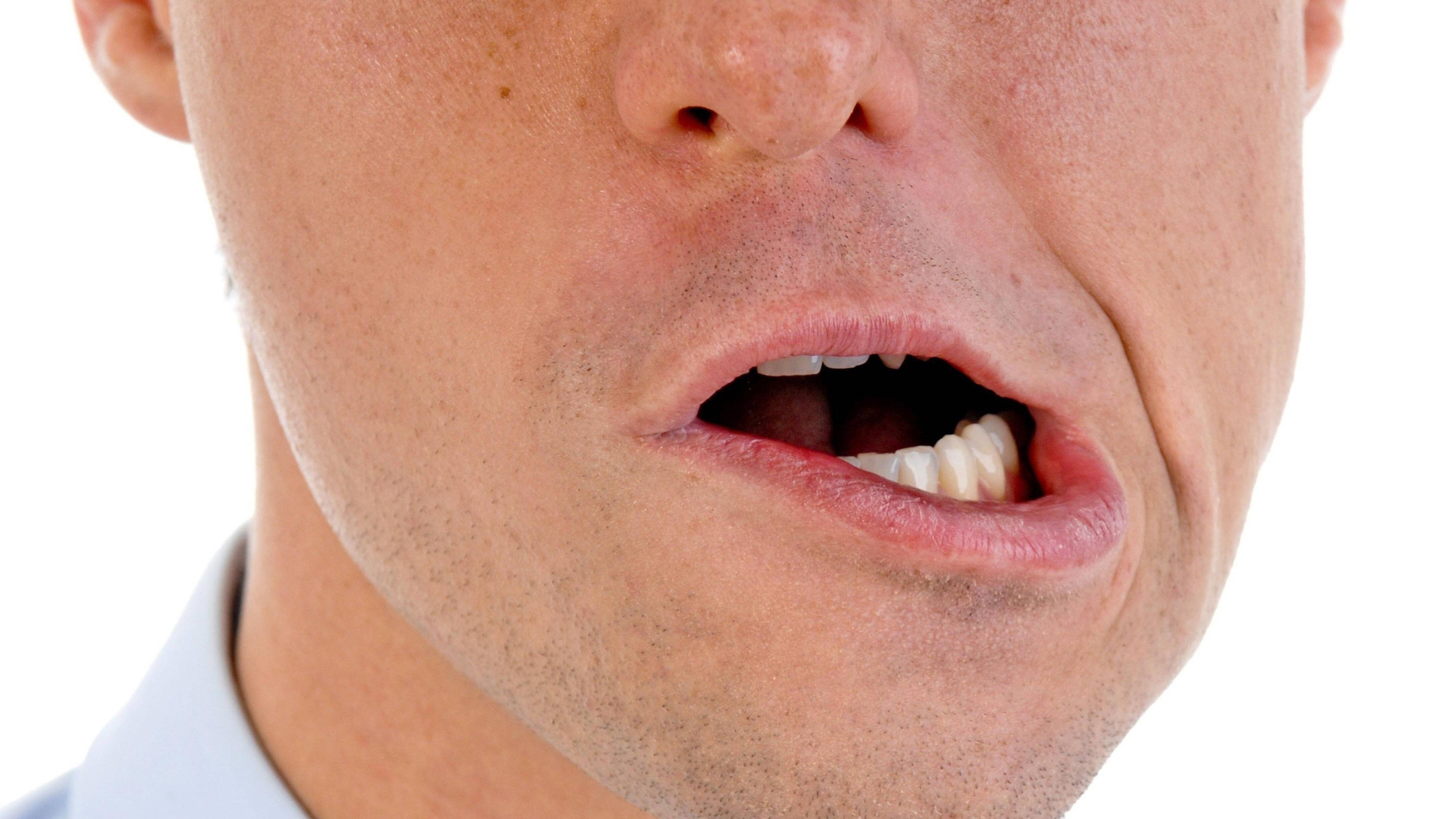 Entzündete Mundwinkel: Ursachen und was Sie dagegen tun können