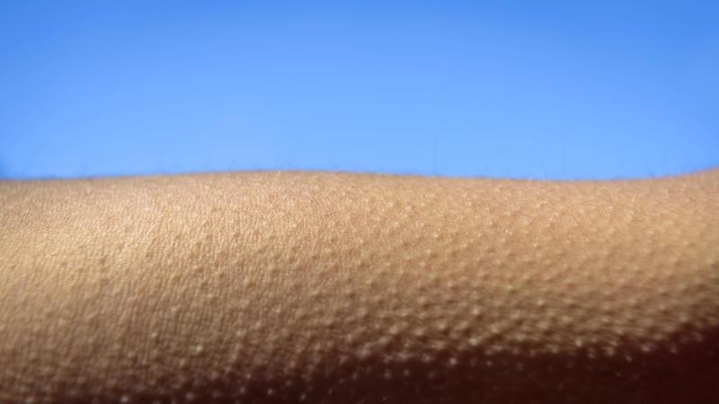 Reibeisenhaut loswerden: Diese Tipps helfen bei Keratosis pilaris