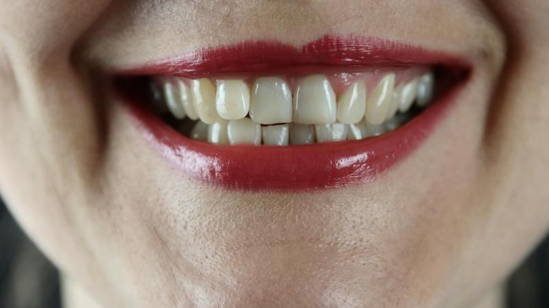 Zähne brechen ab: Mögliche Ursachen und was Sie dagegen tun können