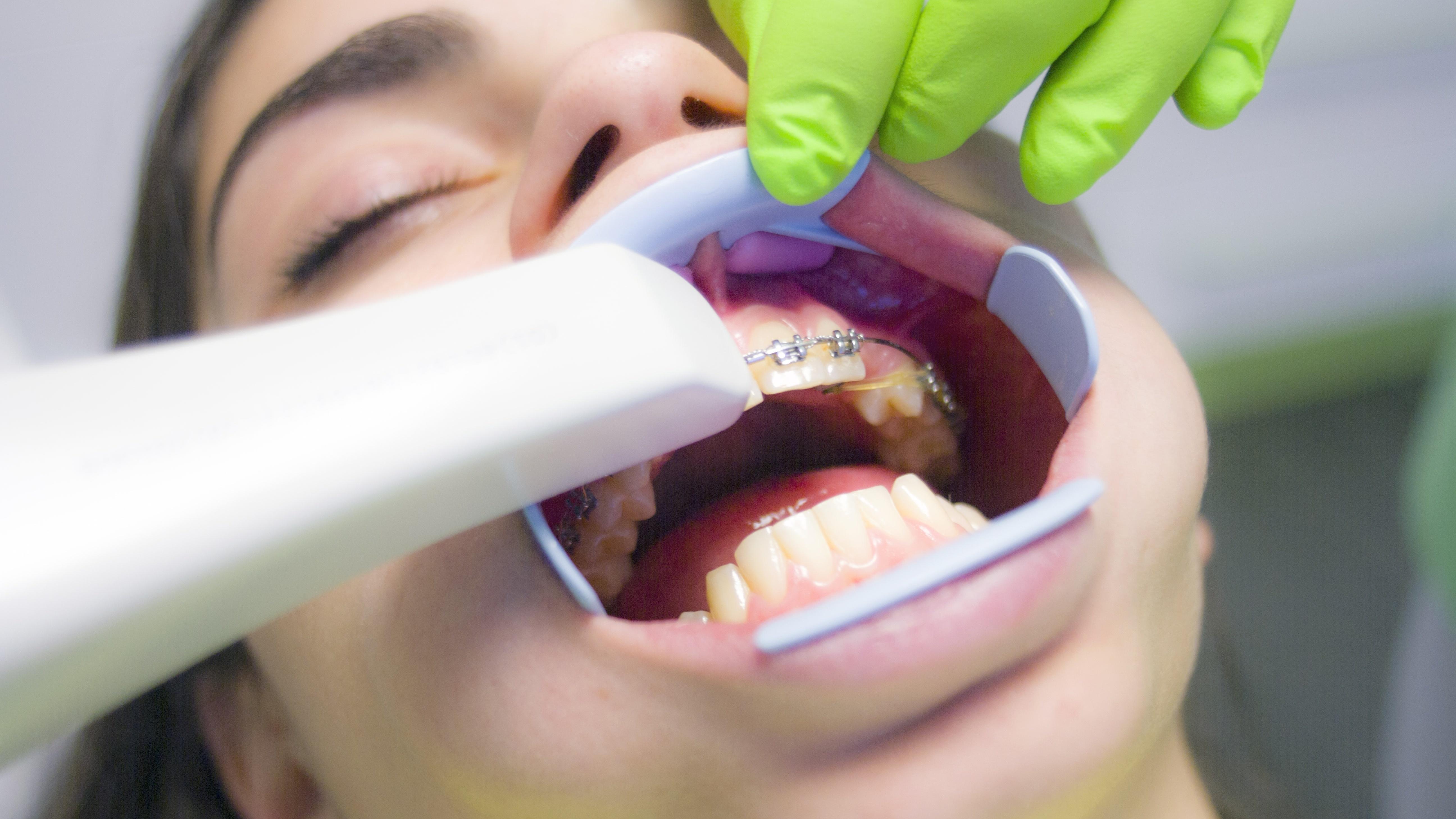 Zähne brechen ab? Der Zahnarzt kann helfen.