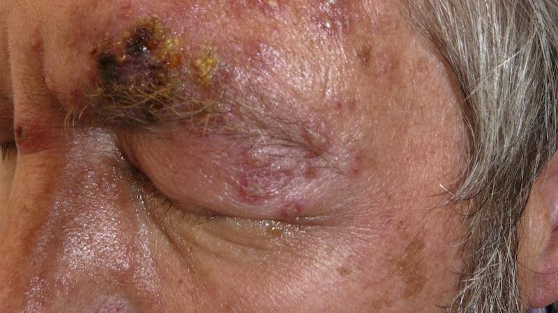 Herpes am Auge - Anzeichen und was Sie dagegen tun können