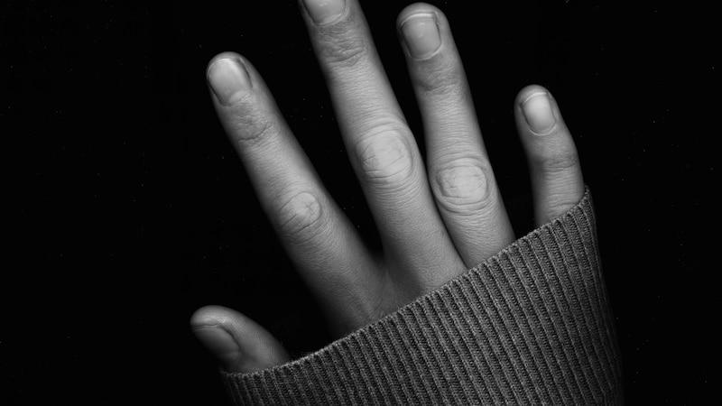Finger werden taub: Das sind die Ursachen