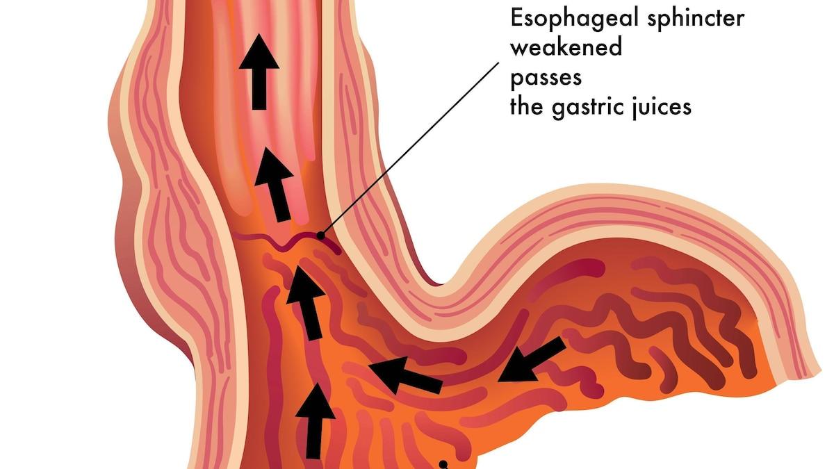 Wenn Magensäure in die Speiseröhre hochsteigt, entsteht Sodbrennen