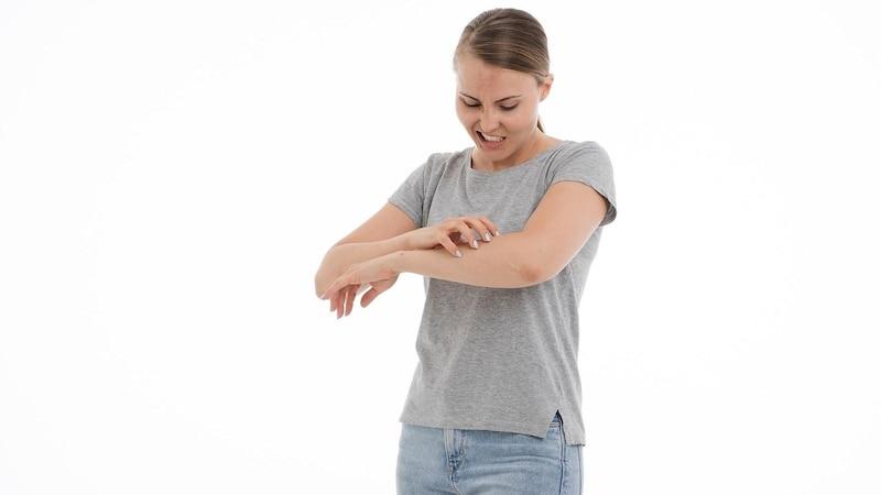 Der Stich einer Gnitze lässt sich anhand der Optik von einem Stechmückenstich unterscheiden. Kratzen sollten Sie vermeiden.