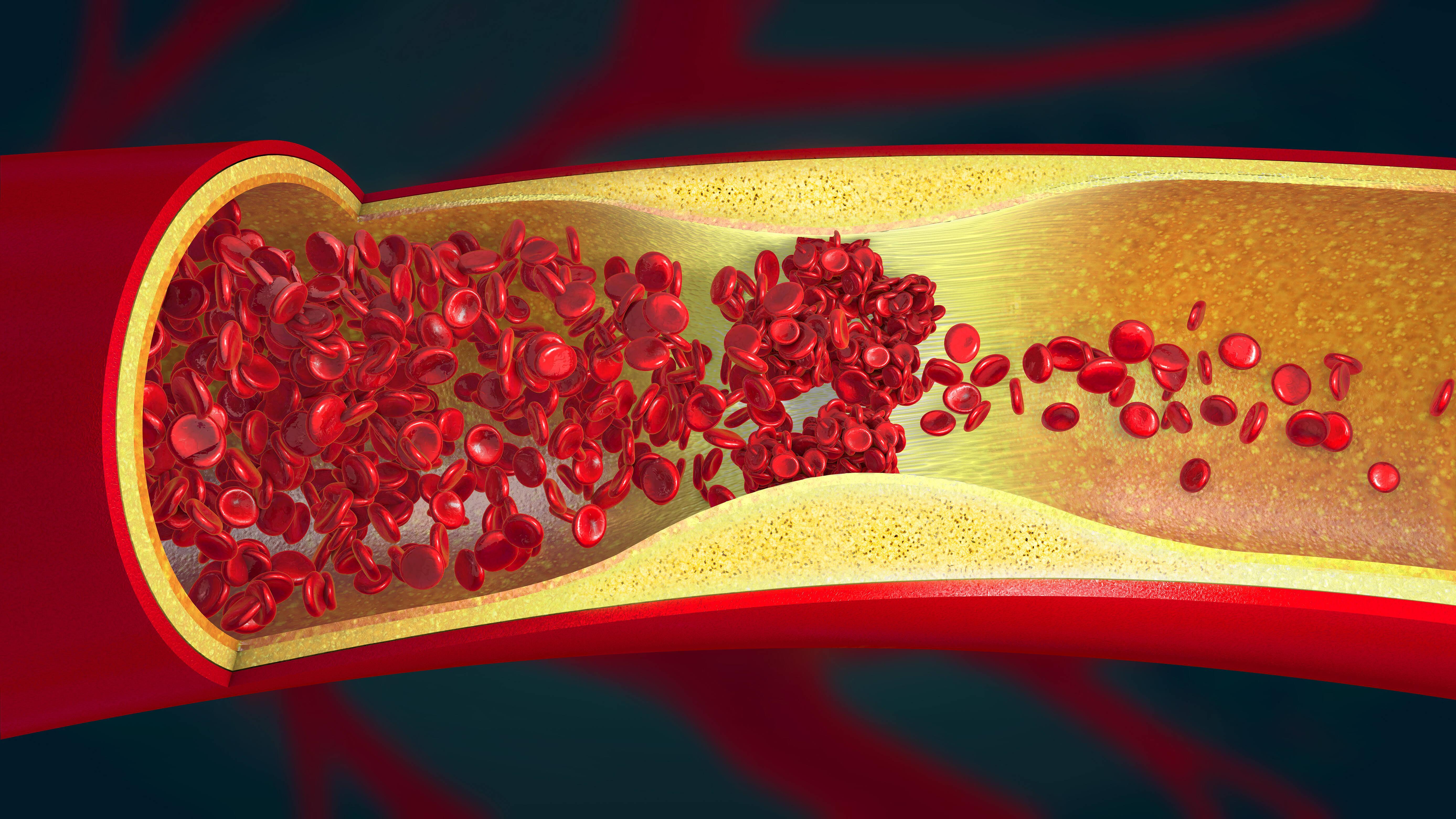 Die Ursachen einer Arteriosklerose sind noch nicht eindeutig geklärt. Erklärungen beruhen bisher auf Hypothesen.