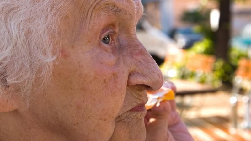 Altersflecken können Sie mit althergebrachten Hausmitteln effektiv entfernen.