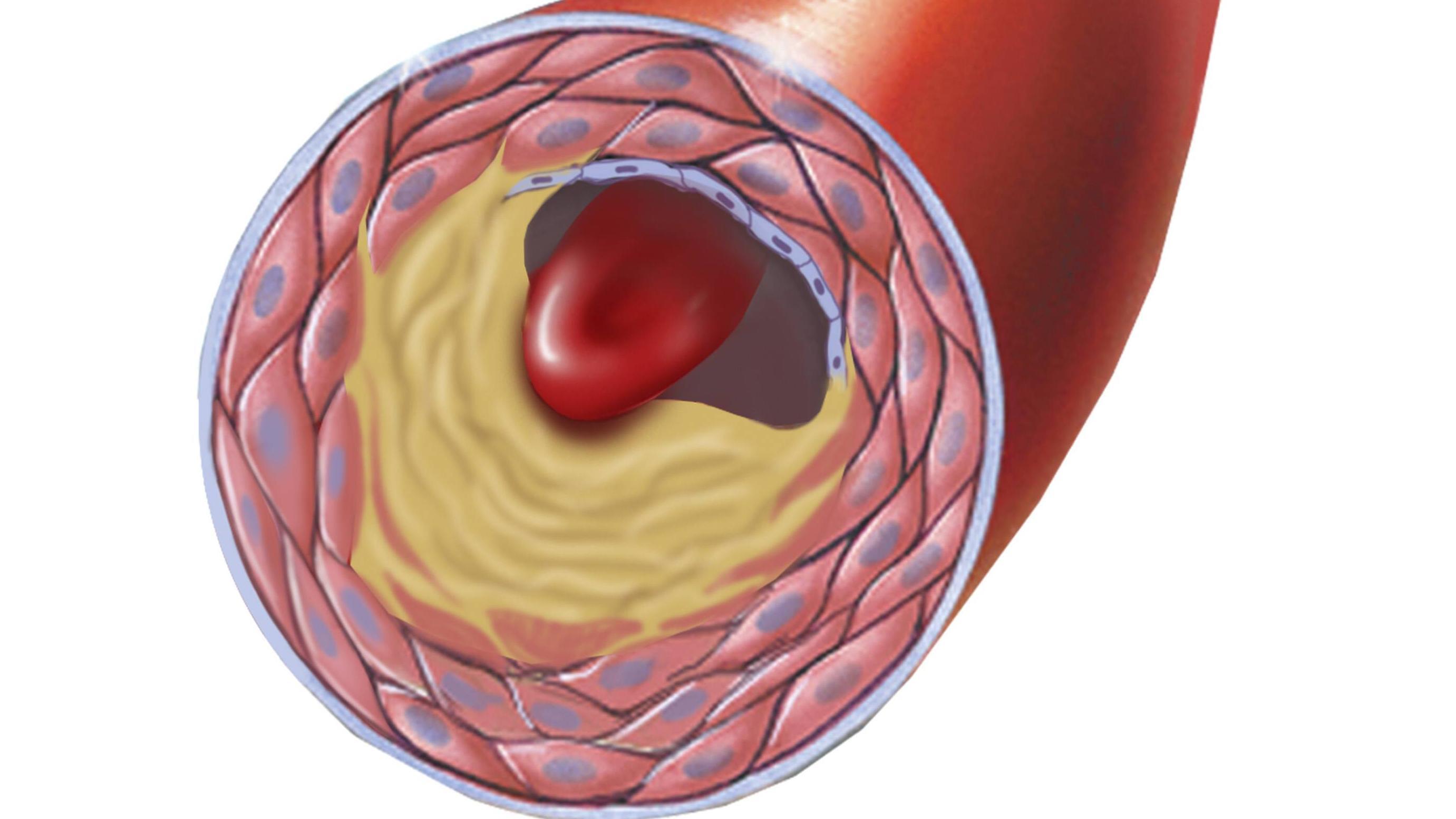 Arteriosklerose: Mögliche Ursachen und Risikofaktoren