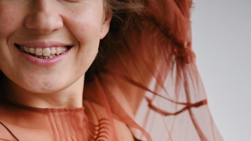 Unauffällig, aber teuer: Das sind die Vor- und Nachteile einer Keramik-Zahnspange.