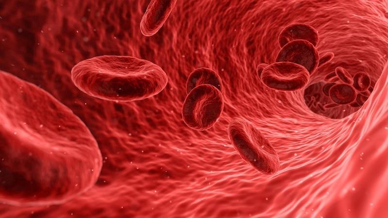 Rückbildung von Arteriosklerose: Das sagt die Forschung