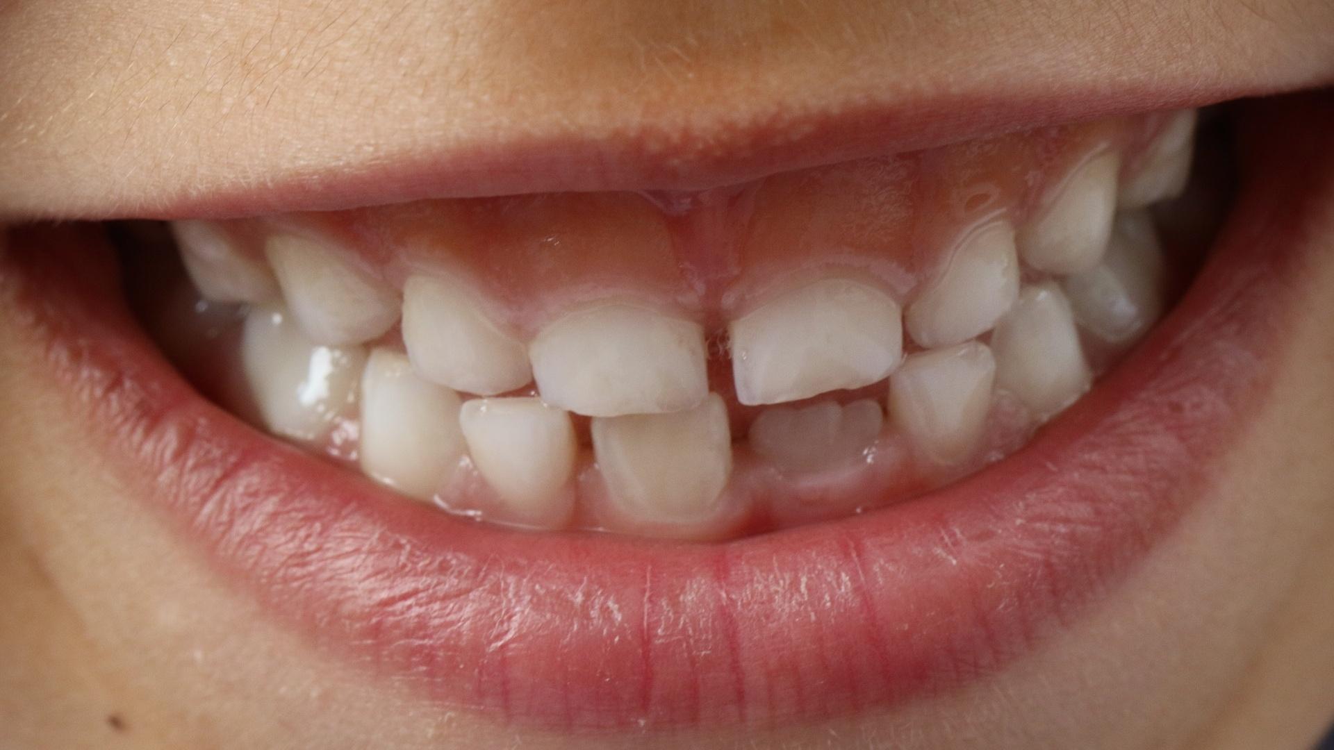 Zahnversiegelung für Kinder - viele Vorteile und nur wenige Nachteile