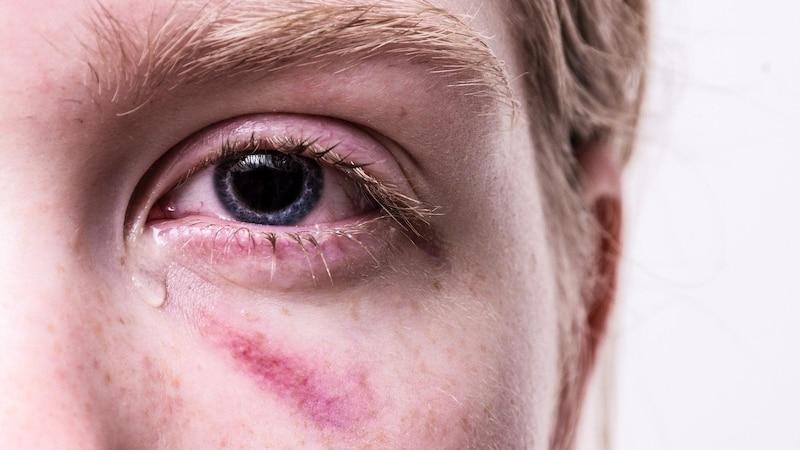 Blaues Auge - Tipps zur Behandlung