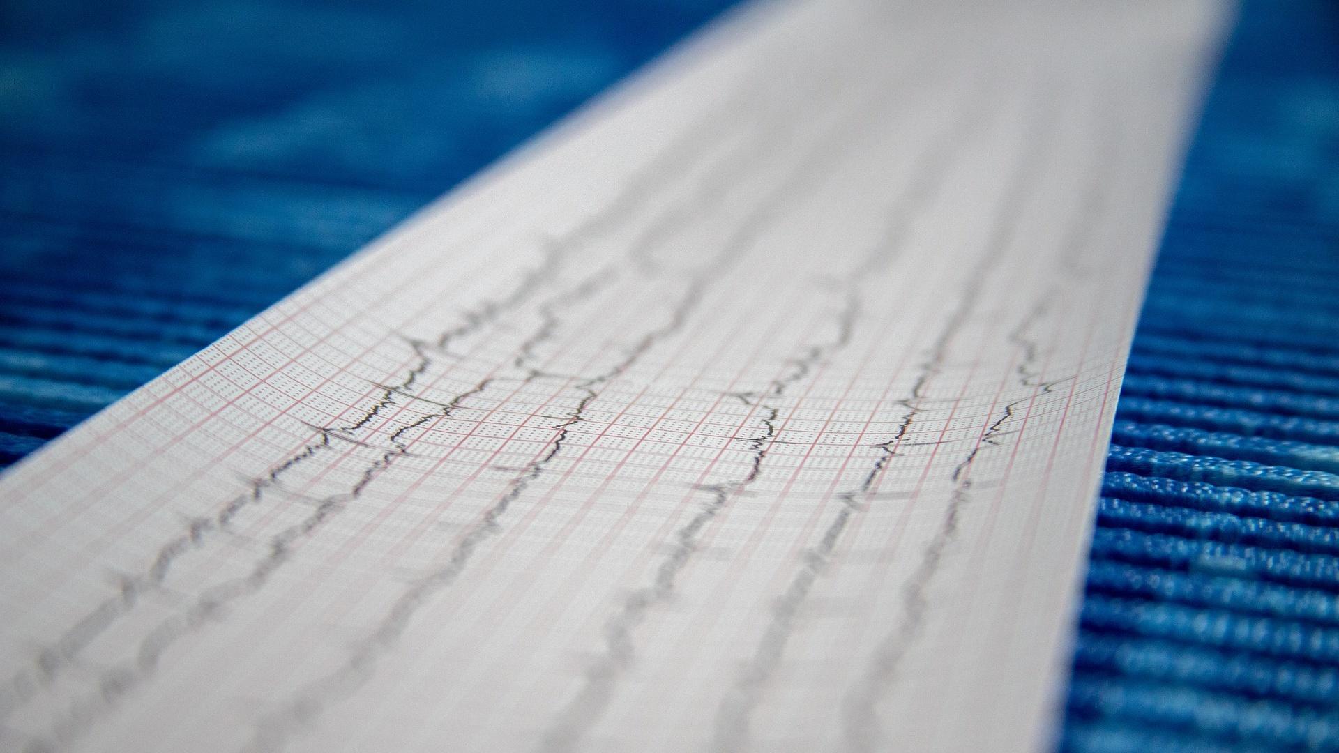 Die Diagnose eines zu langsamen Herzschlags erfolgt in der Regel über ein EKG.