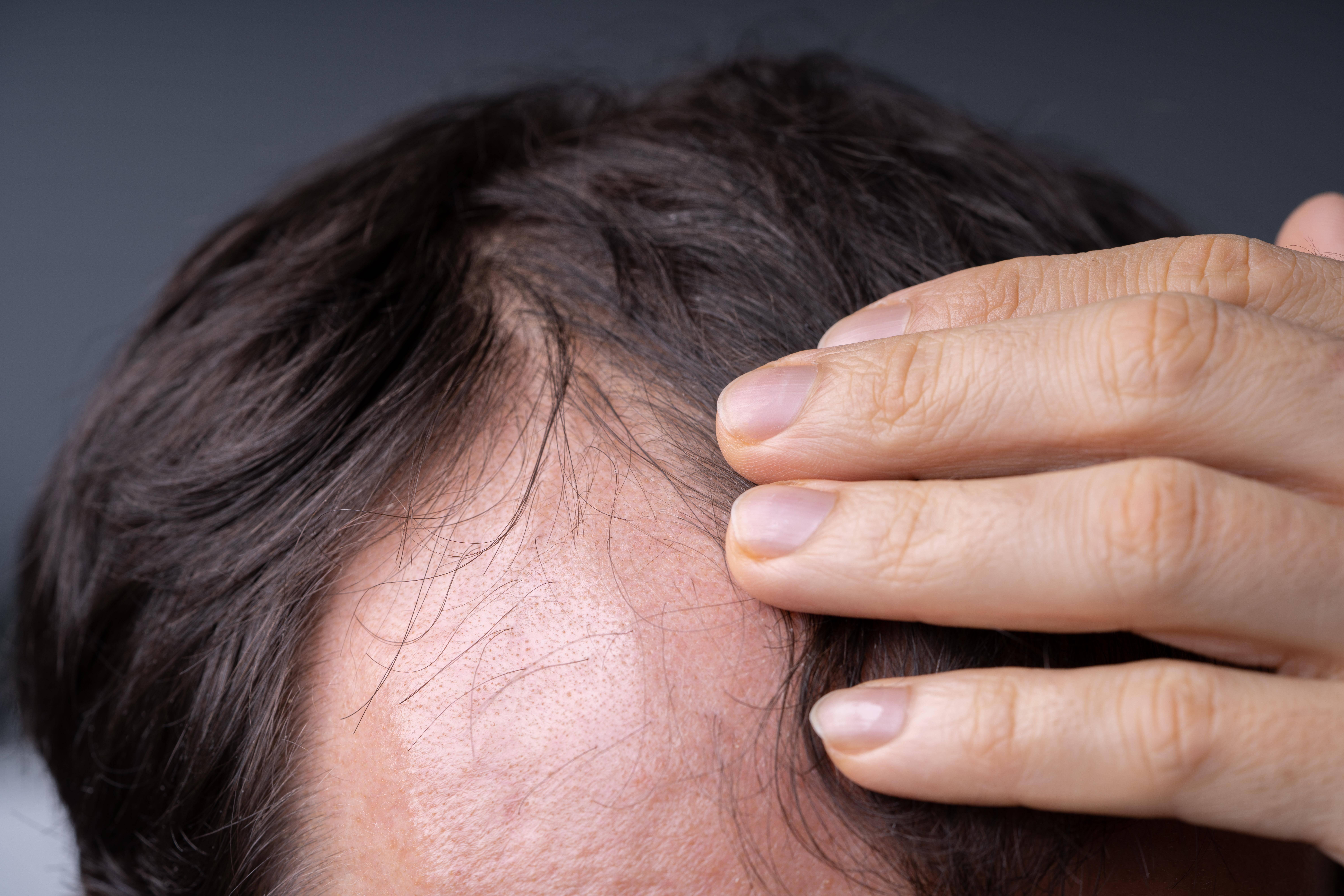 Trichodynie: Kopfhaut schmerzt bei Haarwurzelentzündung