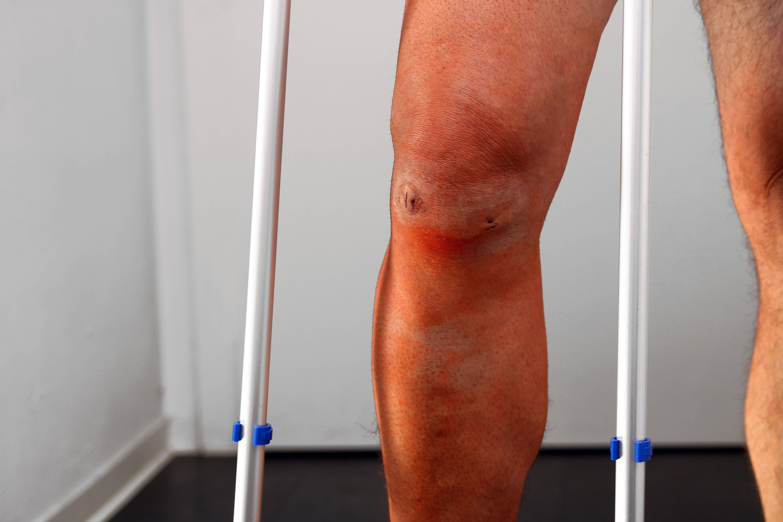 Direkt nach der Knie-OP erfolgt die Frühmobilisation.