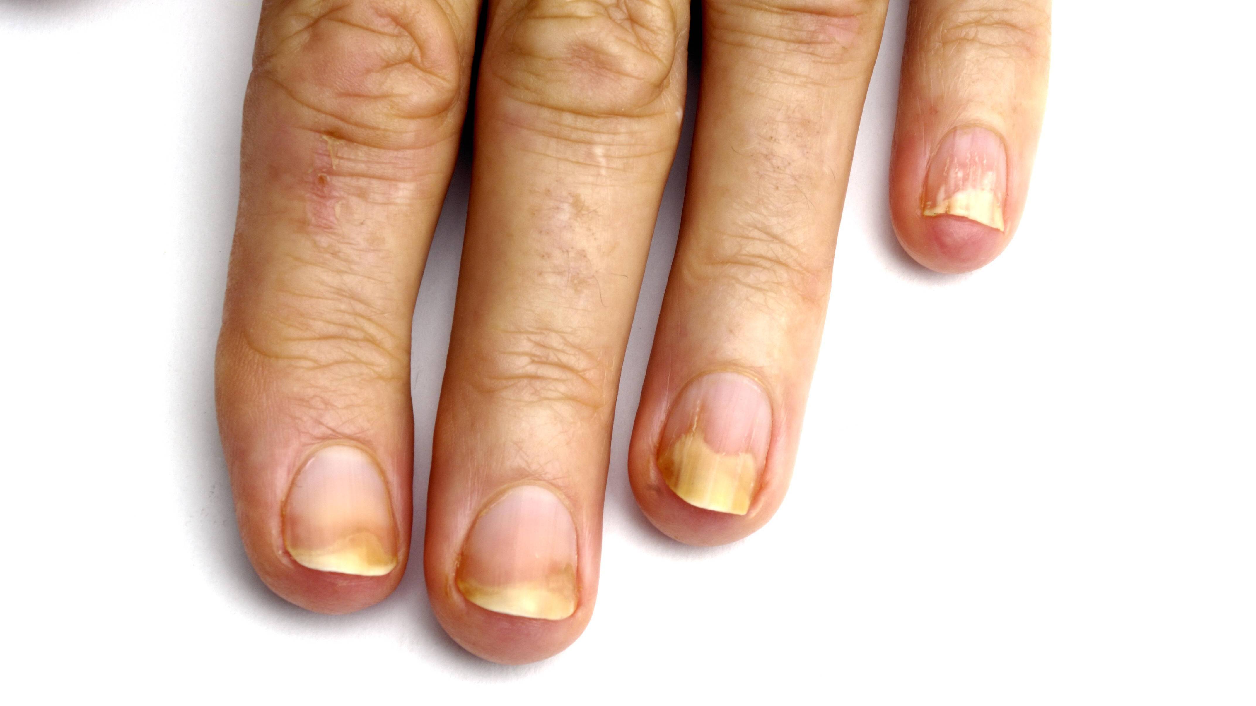 Gelbe Fingernägel: Was Sie dagegen tun können
