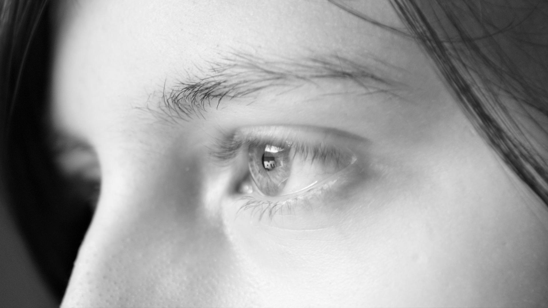 Weiße Punkte im Gesicht - Milien entstehen meist um die Augen und auf den Wangen