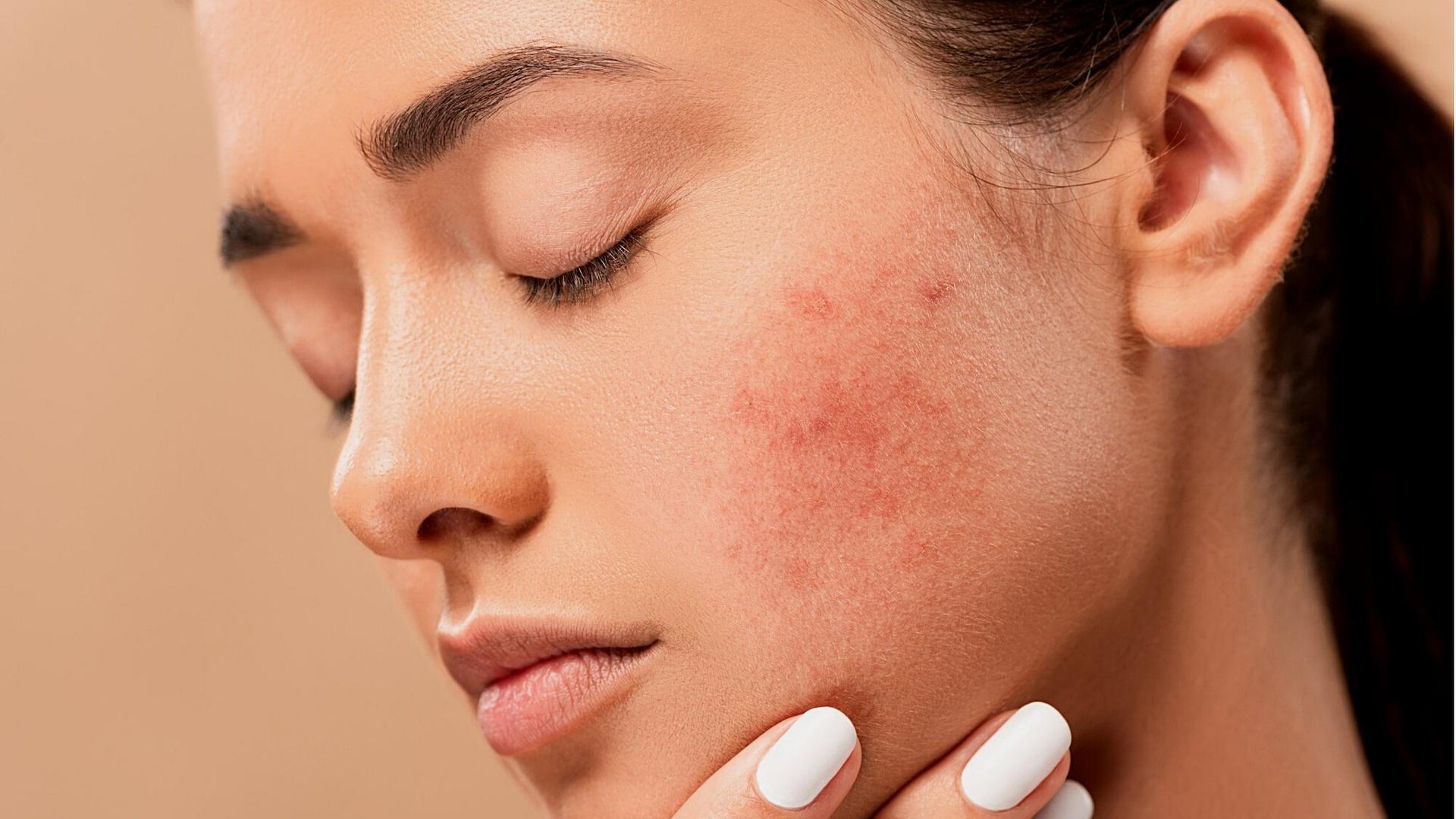 Braune Flecken auf der Haut lassen sich unterschiedlich behandeln.