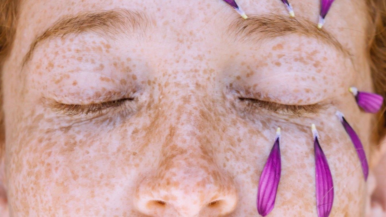 Sommersprossen mit Henna: Wir zeigen Ihnen, wie's geht