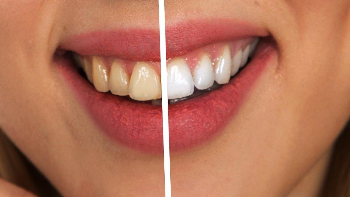 Zähne können Sie zwar zu Hause selber bleichen, wirklich effektiv ist das jedoch nicht.