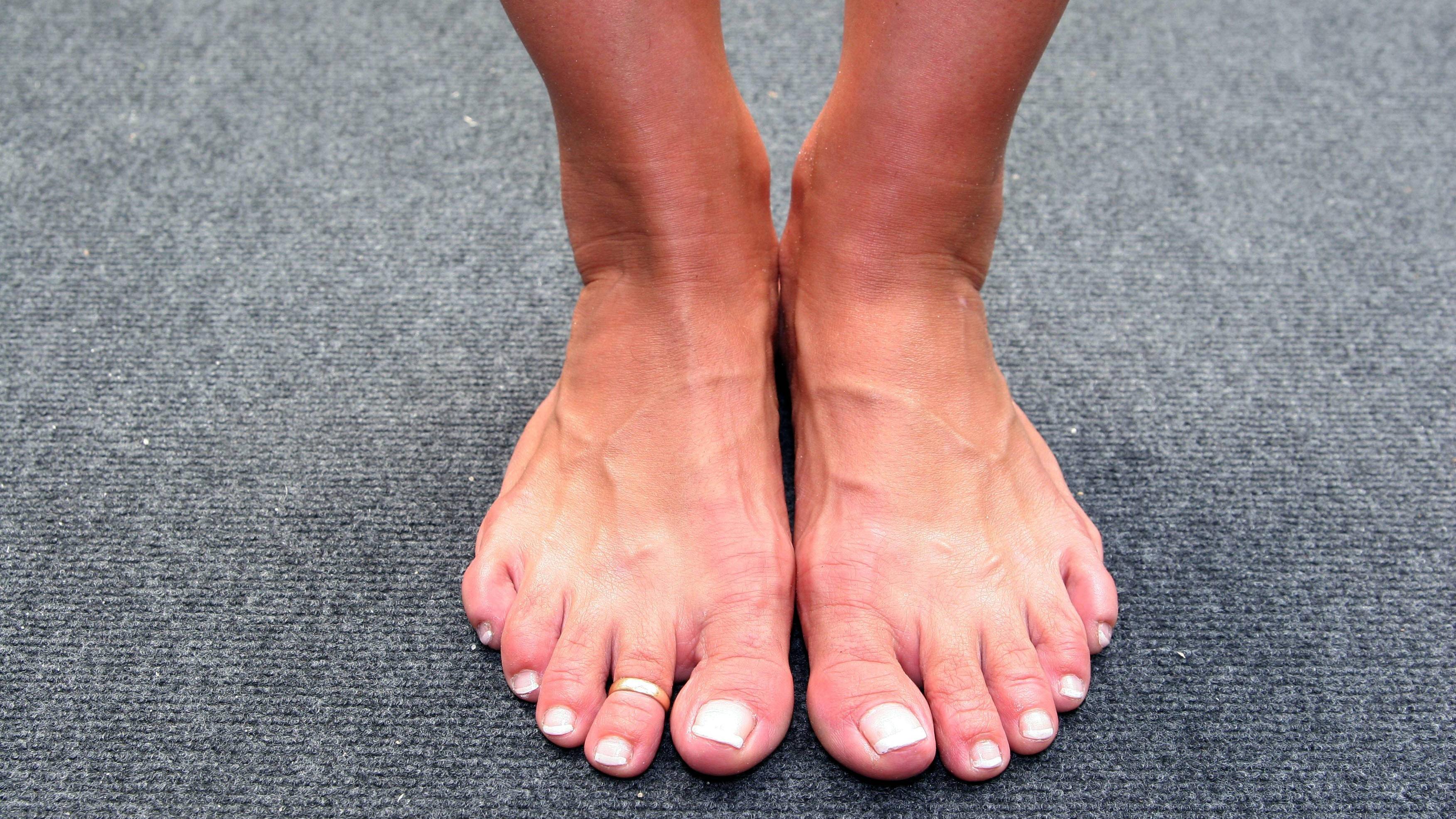 An Zehen kann sich bei einer Entzündung Eiter bilden