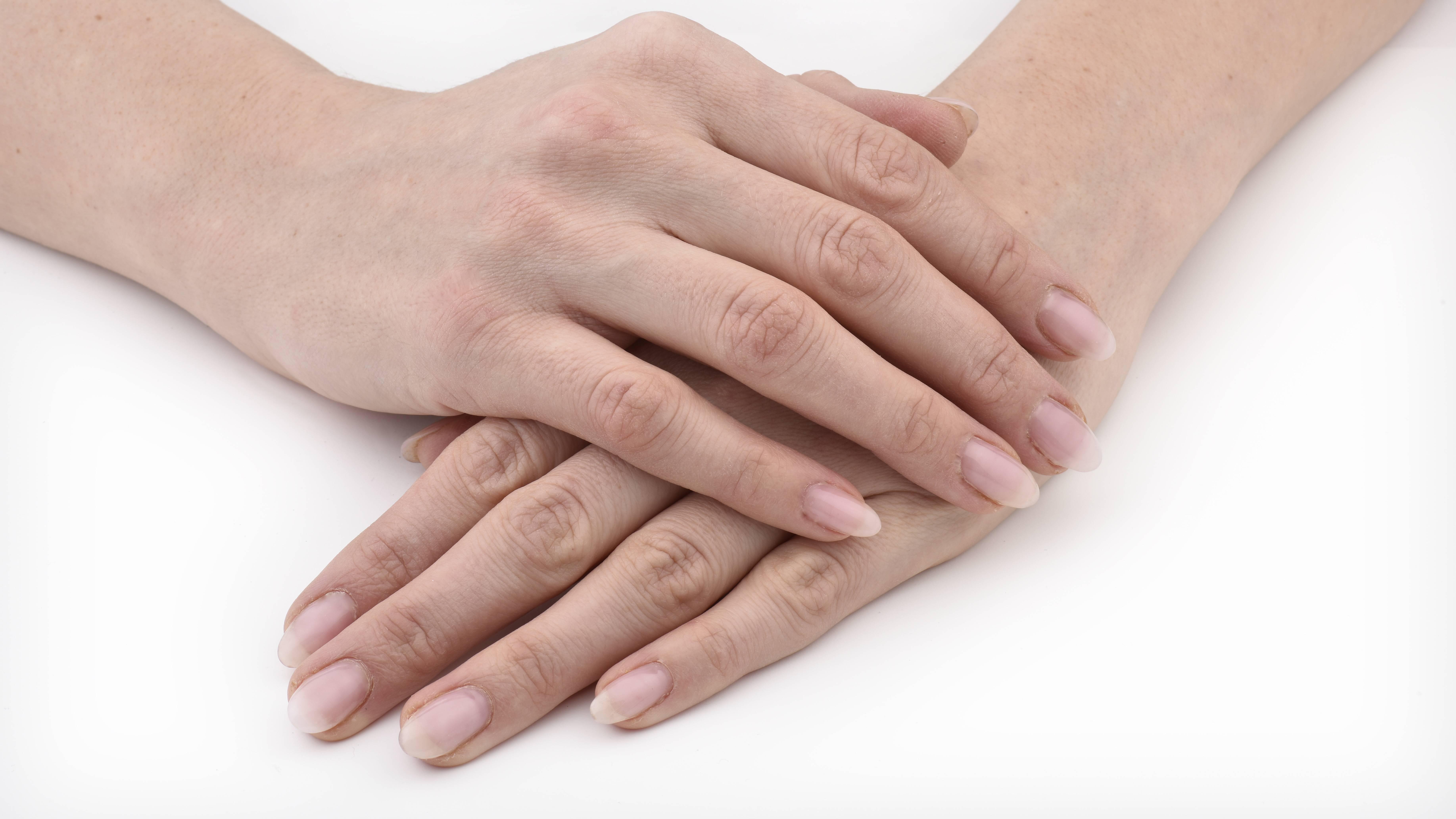 Hände schwitzen: Das können Sie dagegen tun