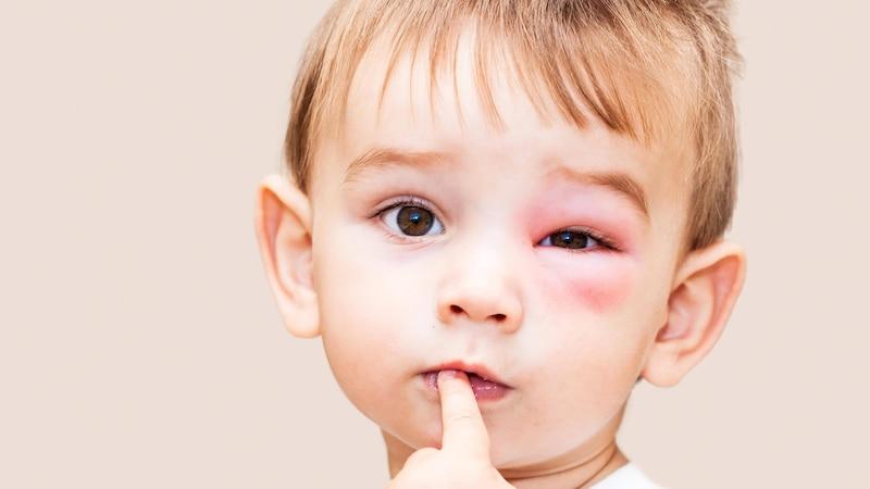 Wespenstich am Auge: In manchen Situationen sollten Sie statt der Zwiebel lieber den Arzt bemühen.