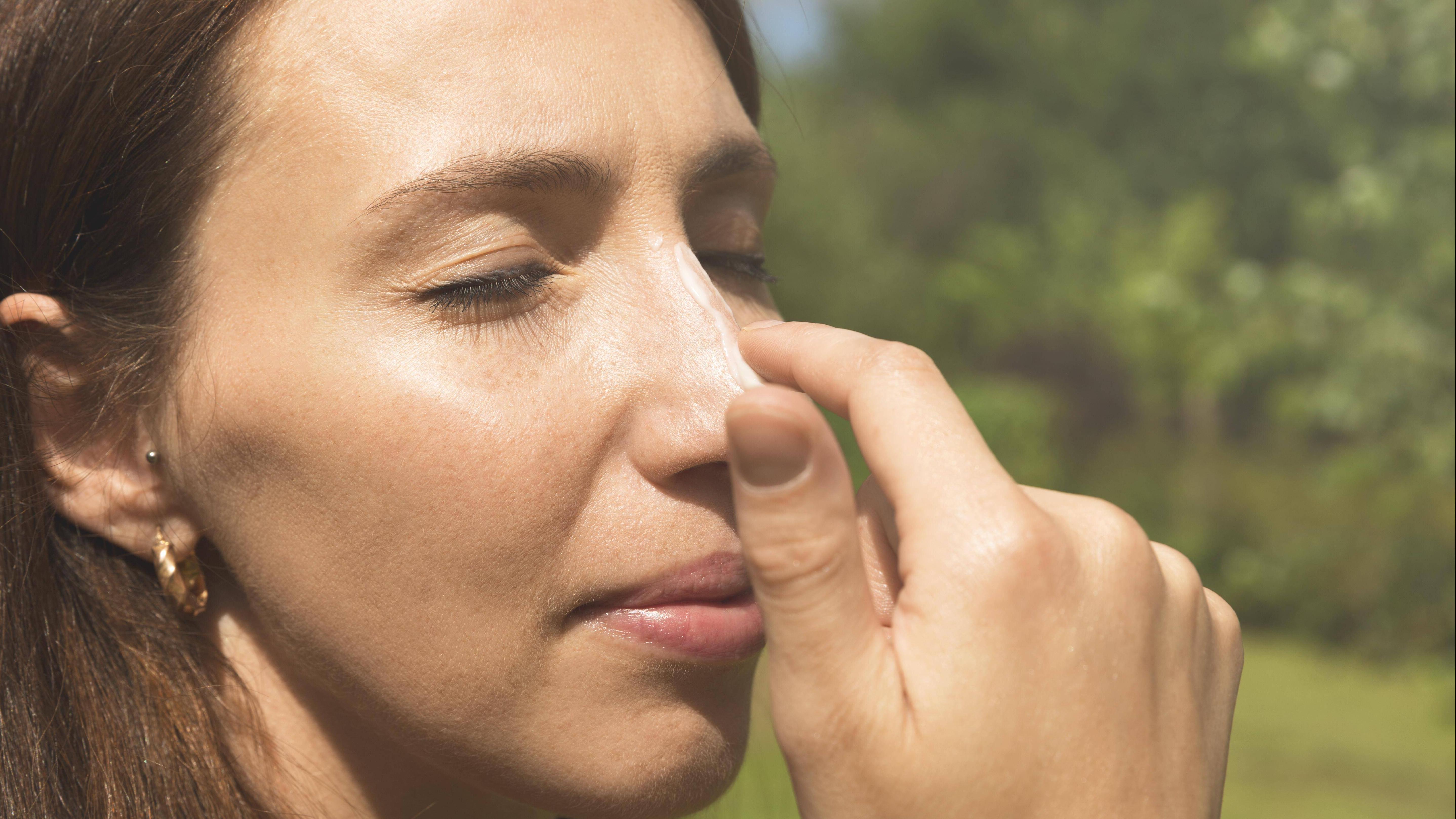 Sonnenbrand im Gesicht: Hilfreiche Tipps gegen die Rötung