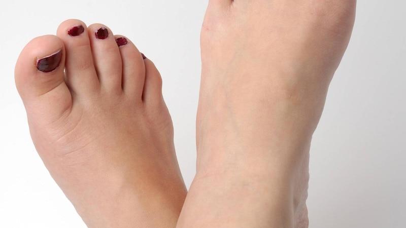 Bluterguss unter Zehennagel: Das können Sie dagegen tun