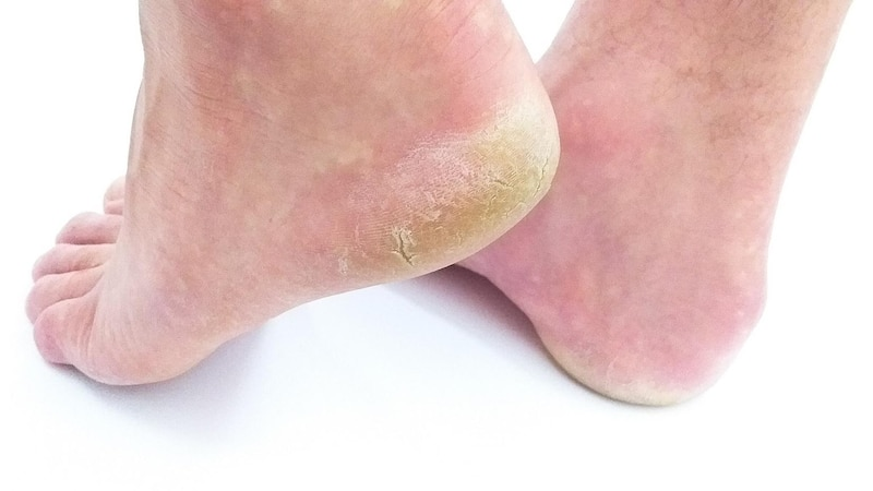 Fußmaske gegen Hornhaut - so wirkt der neue Trend und so handeln Sie dabei.