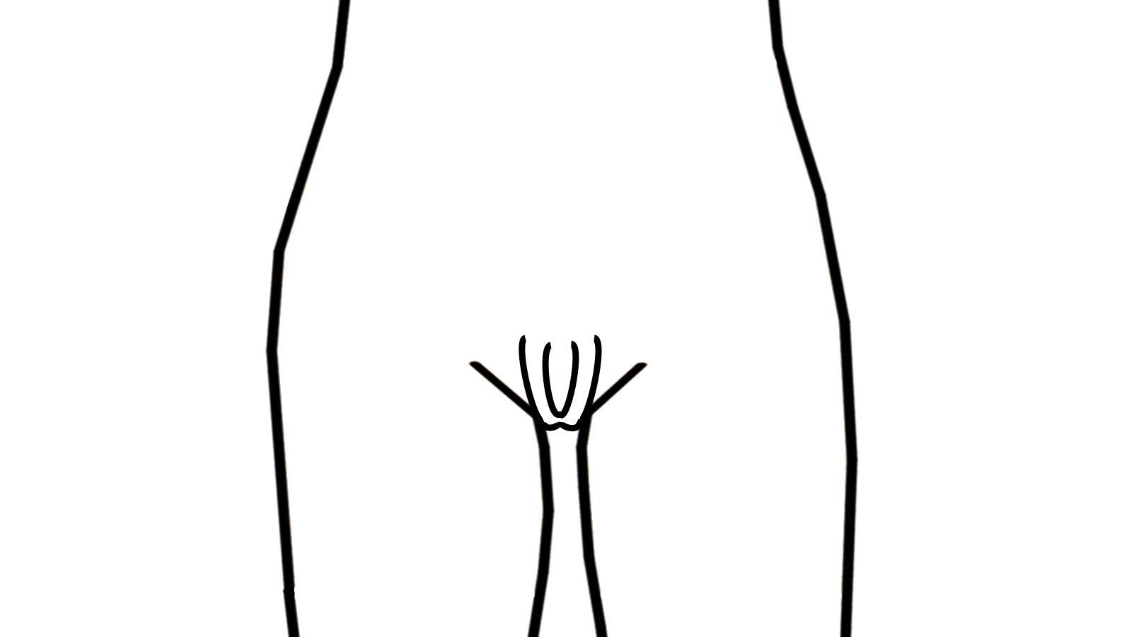 Die Horseshoe-Vulva sieht aus wie ein Hufeisen.