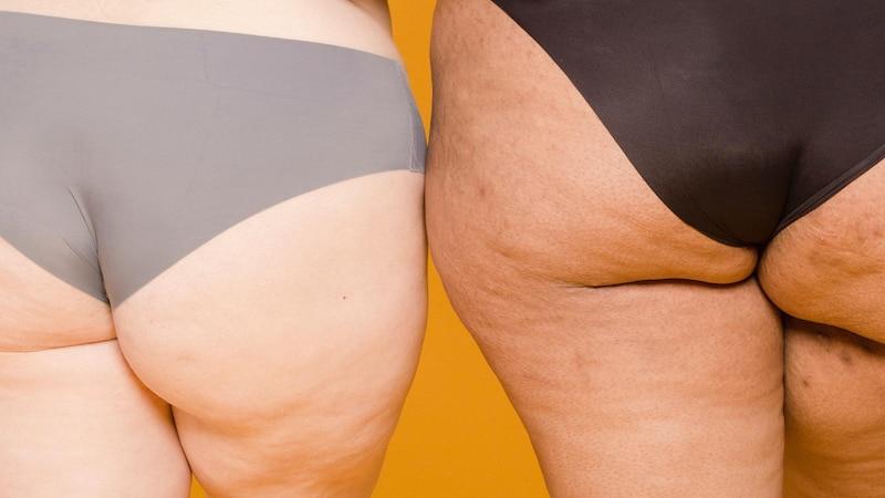 Cellulite am Po wegbekommen: Die besten Tipps & Hausmittel