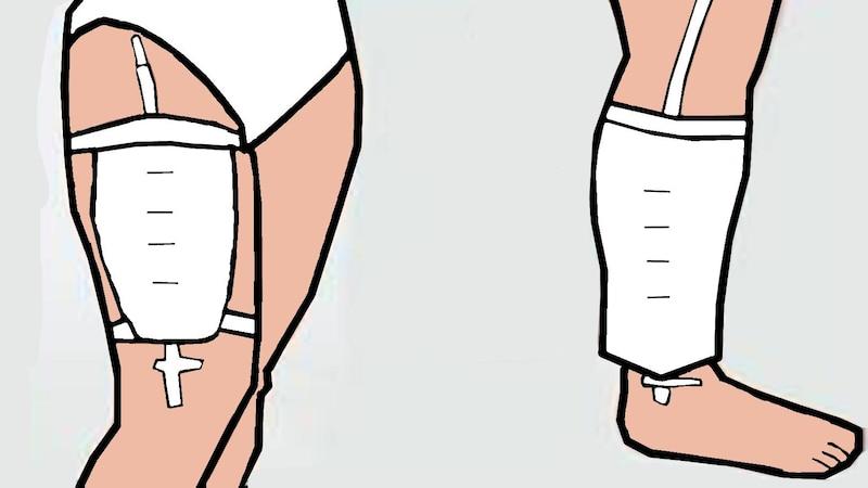 Urinbeutel werden über Bänder am Bein befestigt, um den Träger Diskretion zu gewährleisten.