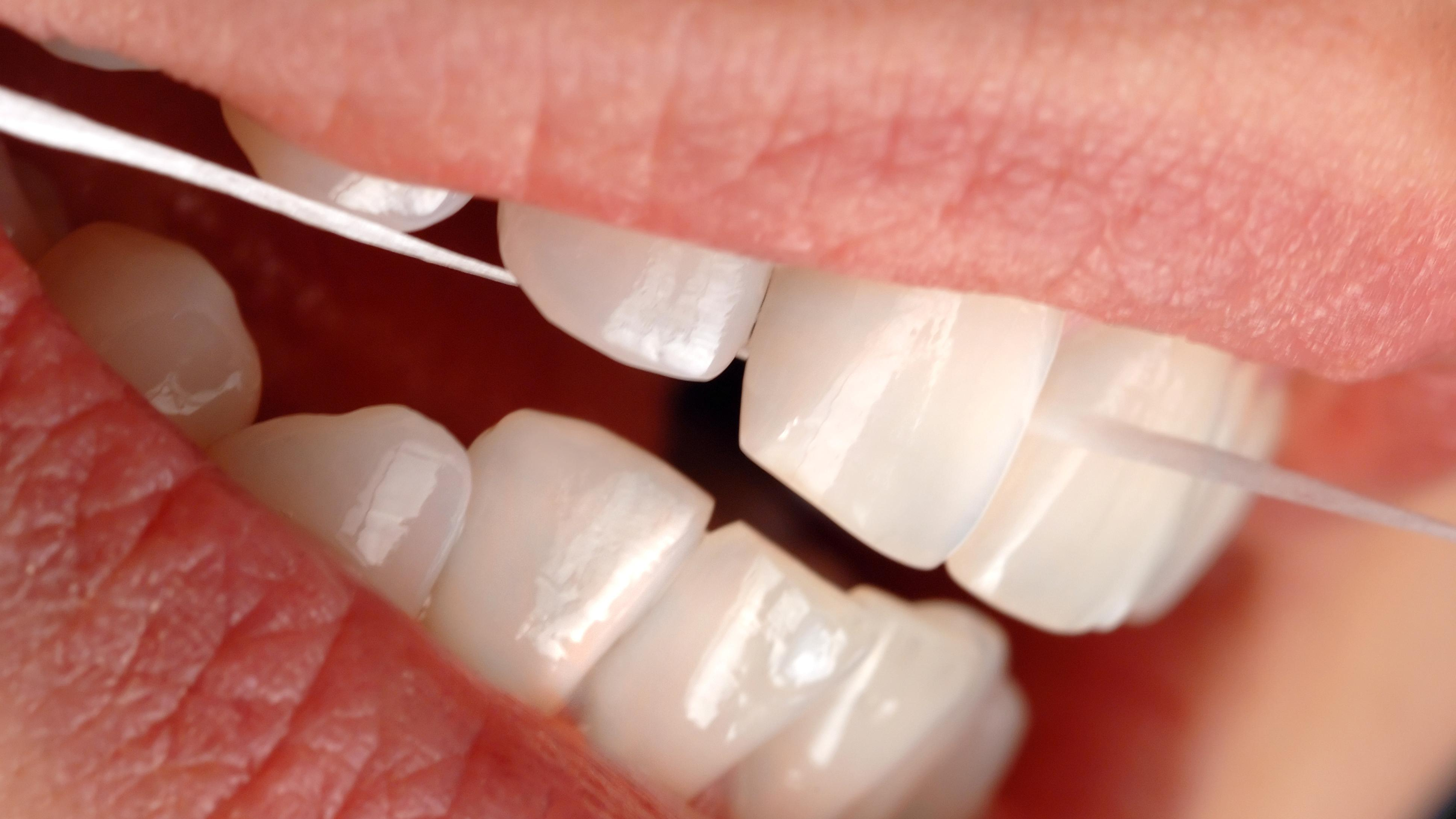 Zahnseide reinigt Zwischenräume gründlich.