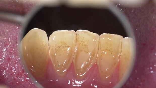 Zahnstein oder Karies - Zahnstein tritt häufig an den Rückseiten der unteren Schneidezähne auf.
