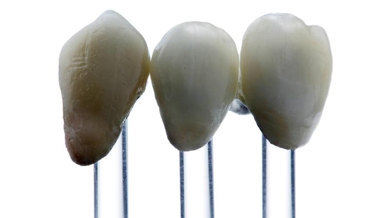 Zähne überkronen: Alle Infos zum Ablauf