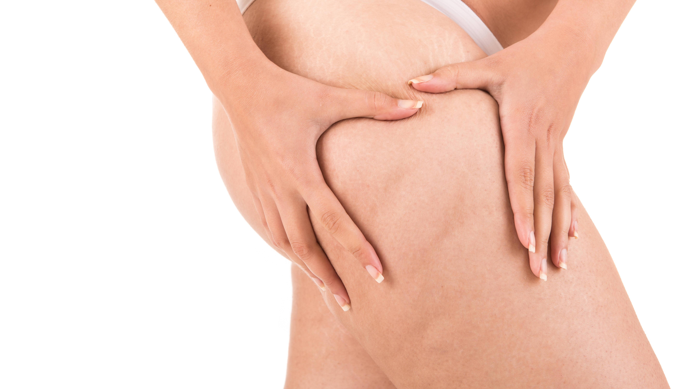 Ultraschall gegen Cellulite: Das bringt die Behandlung