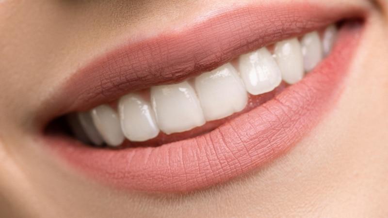 Zähne aufhellen: Diese Methoden gibt es