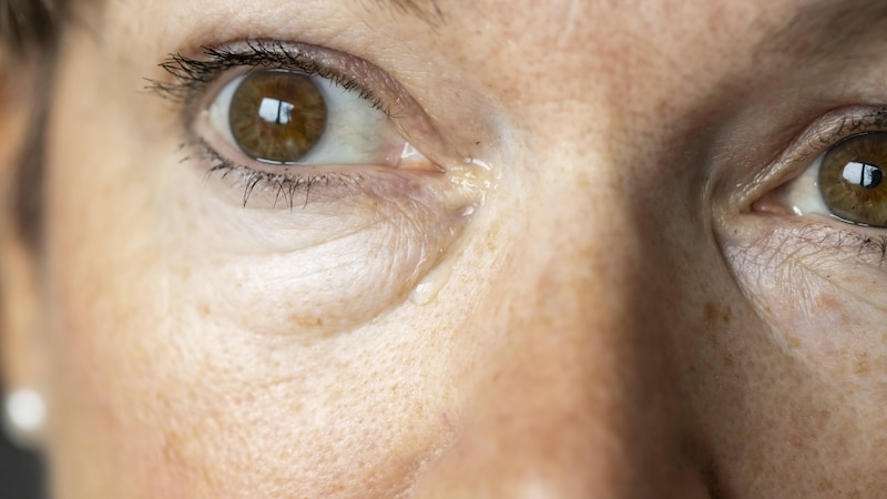 Bindehautentzündung: Ursachen und Anzeichen