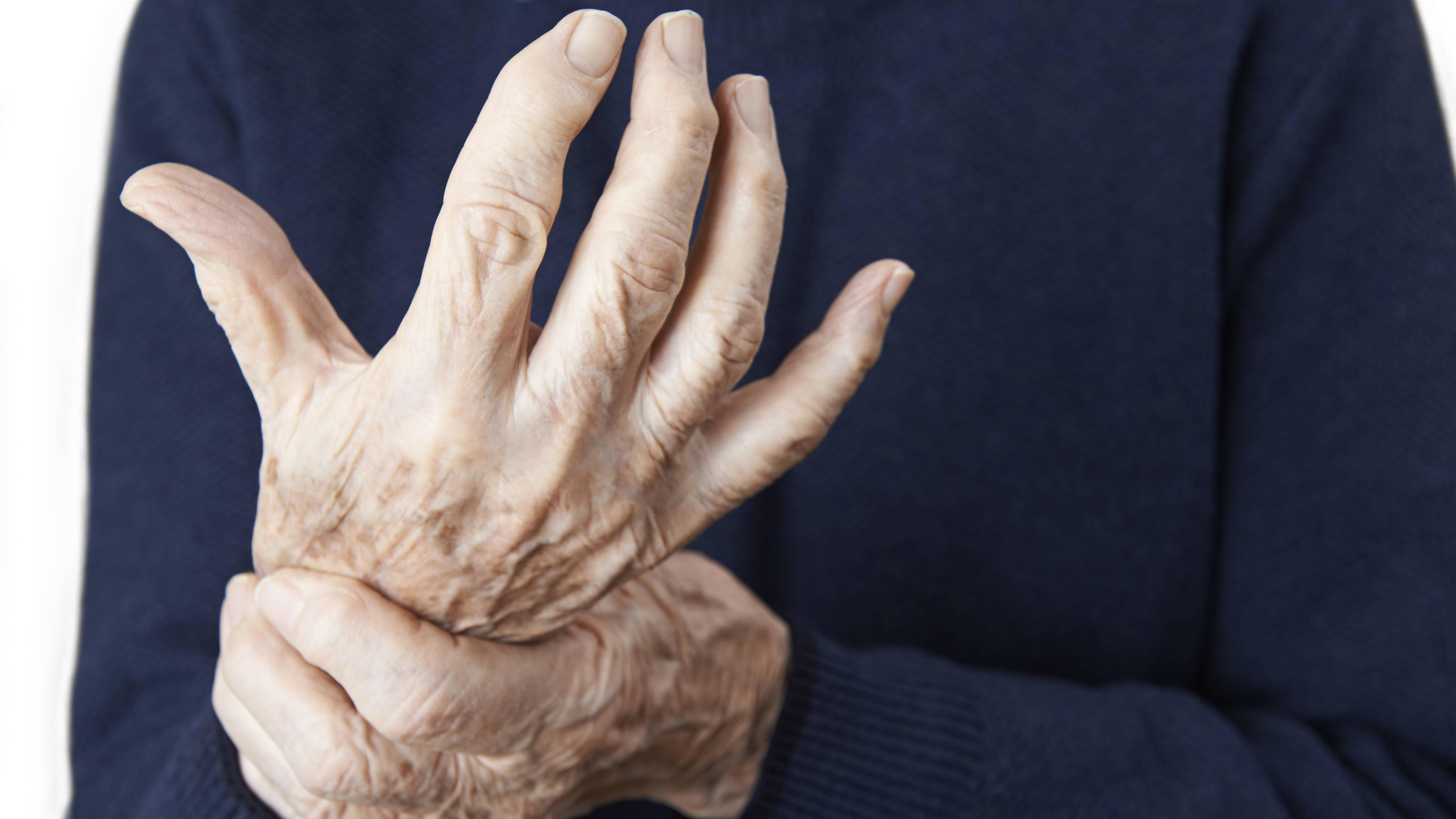 Arthritis - was ist das? Einfach erklärt