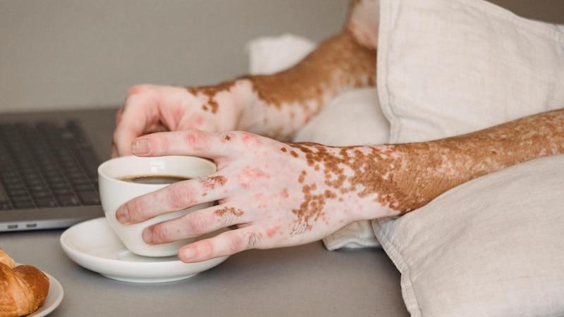 Weiße Pigmentflecken: Ursachen & was Sie gegen Vitiligo tun können