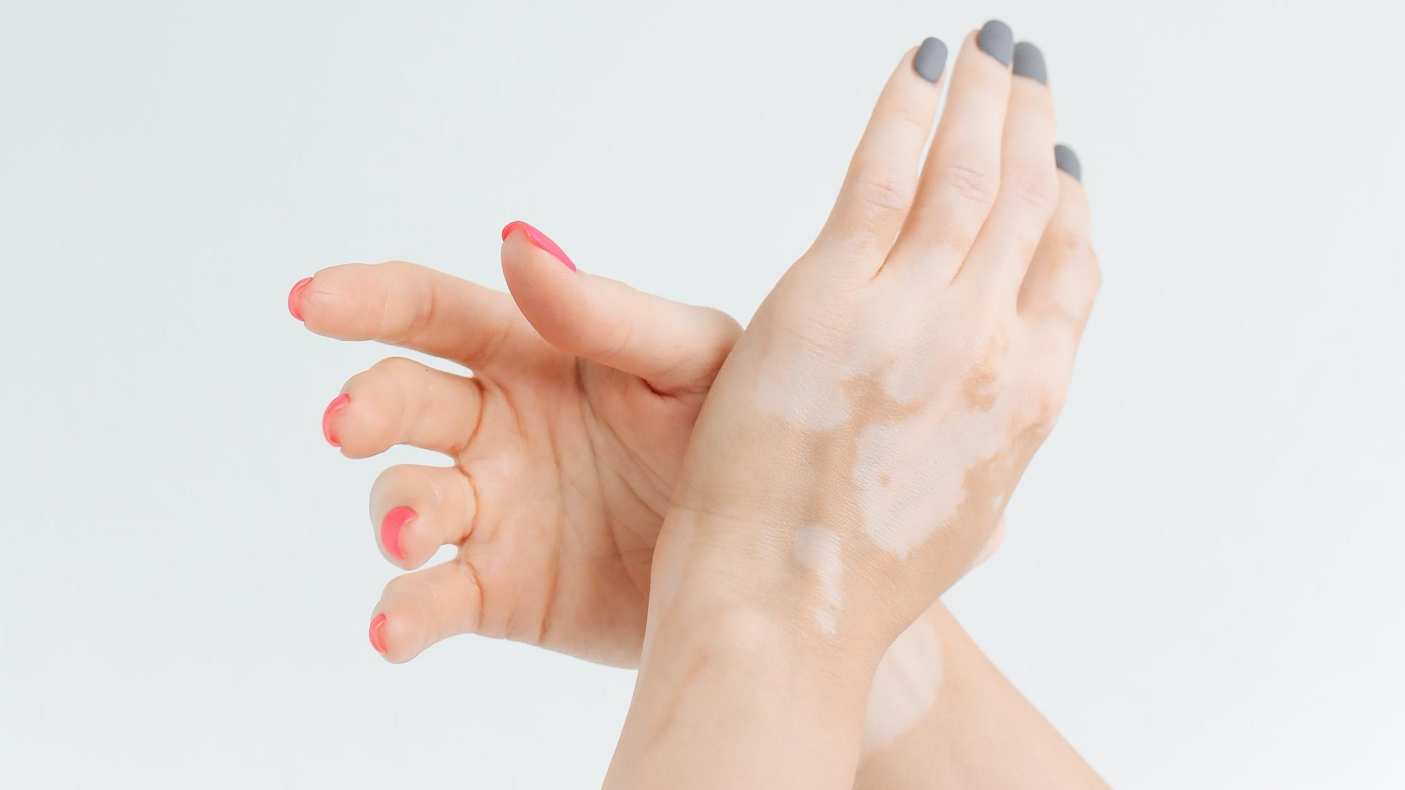 Entdecken Sie nach dem Sonnen weiße Flecken auf Ihrer Haut, so kann dies verschiedene Gründe haben.