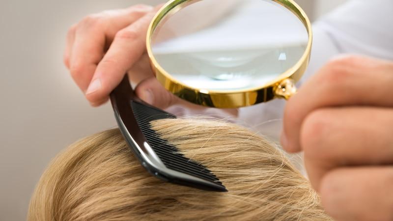 Haarausfall: Wann Sie zum Arzt gehen sollten und was er tun kann